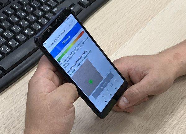 Мобилно приложение открива ранни признаци на меланом